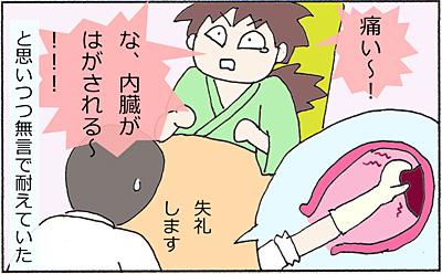 胎盤3.jpg